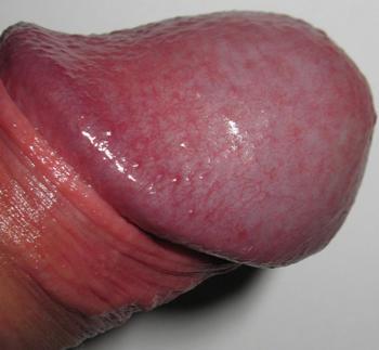 Svamp pa penis