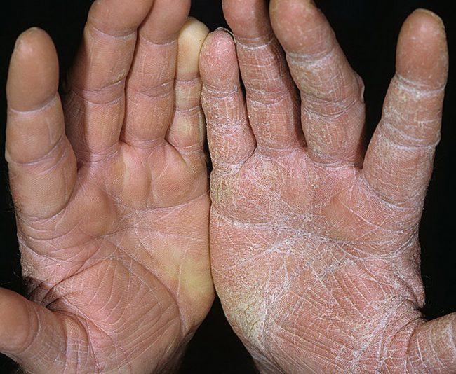 пальцы на руках шершавые устали